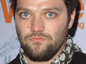 Jackass star Bam Margera is in hospital following a baseball bat attack.