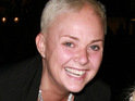 "Gail Porter writes on her Twitter that her newly-grown hair ""is falling out rather rapidly""."