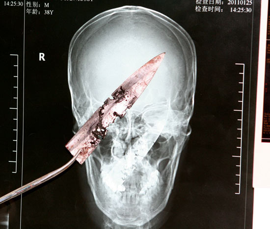 Knife in head