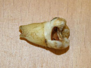 John Lenoon&#39;s tooth