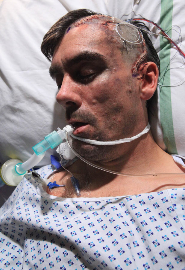 Cain Dingle (Jeff Hordley) in hospital