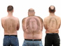 Have a look at some chaps with the Foster's logo waxed into their hairy backs.
