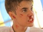 Bieber bloodied in new photoshoot - video