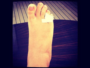 Rihanna broken toe as posted on Instagram