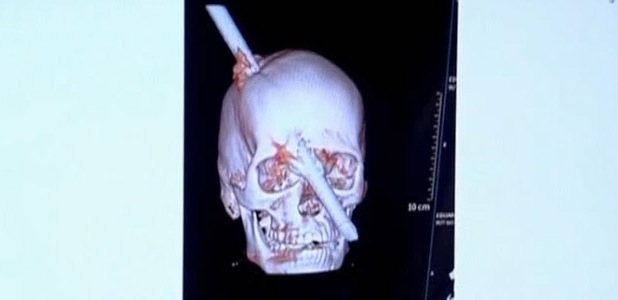 Brazilian man survives pole through head