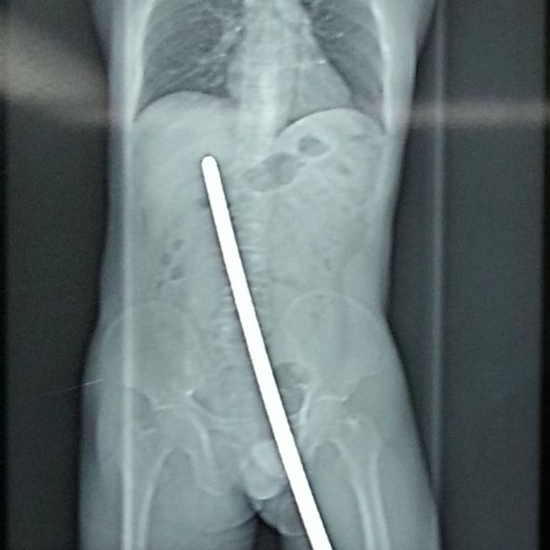 Builder impaled on metal bar