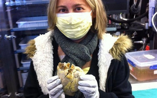 Woman pictured holding own heart after transplant