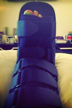 Kelly Osbourne injures her foot