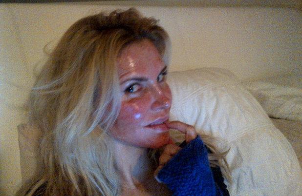 Brandi Glanville after laser surgery