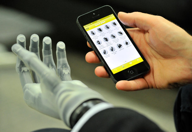 The i-limb ultra revolution prosthetic hand controlled by iOS app