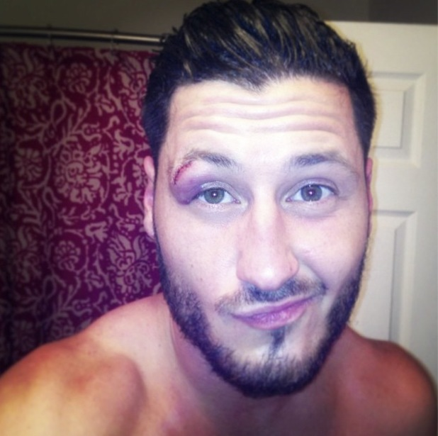 Val Chmerkovskiy shows off his Dancing With The Stars injury