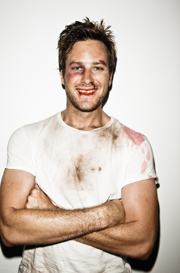 Armie Hammer bloodied  bruised and beaten in  Men s Health  shootArmie Hammer