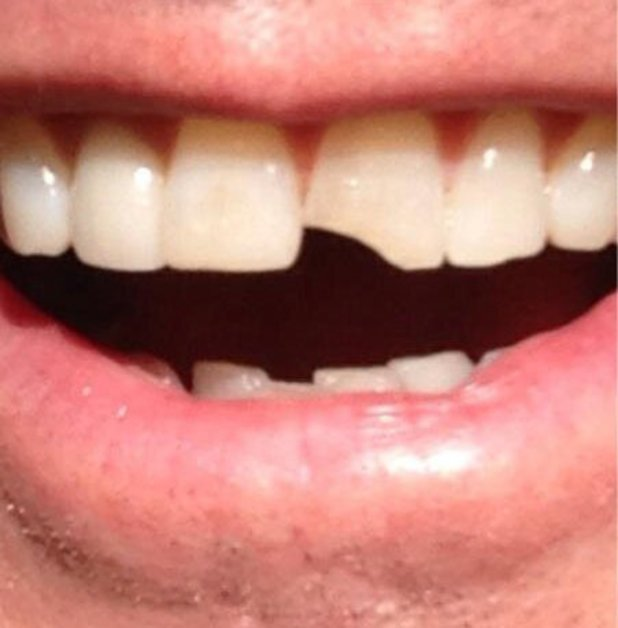 Jim Carrey shows off Lloyd Christmas teeth for 'Dumb and Dumber To'