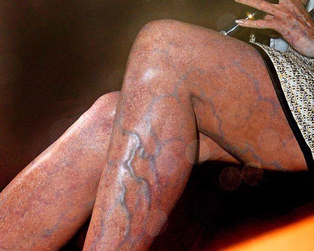 Heidi Klum, varicose veins, Halloween 2013