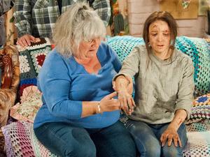 Lisa examines belle's injuries